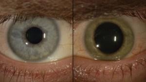 El color azul de los ojos del médico Ian Crozier cambió a verde con la presencia del virus del Ébola en su interior (Emory Eye Center)
