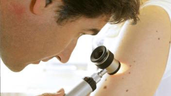 Lunares cáncer de piel melanoma contar brazo derecho