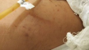 Algunas de las heridas y moretones de Huang Tanghong.