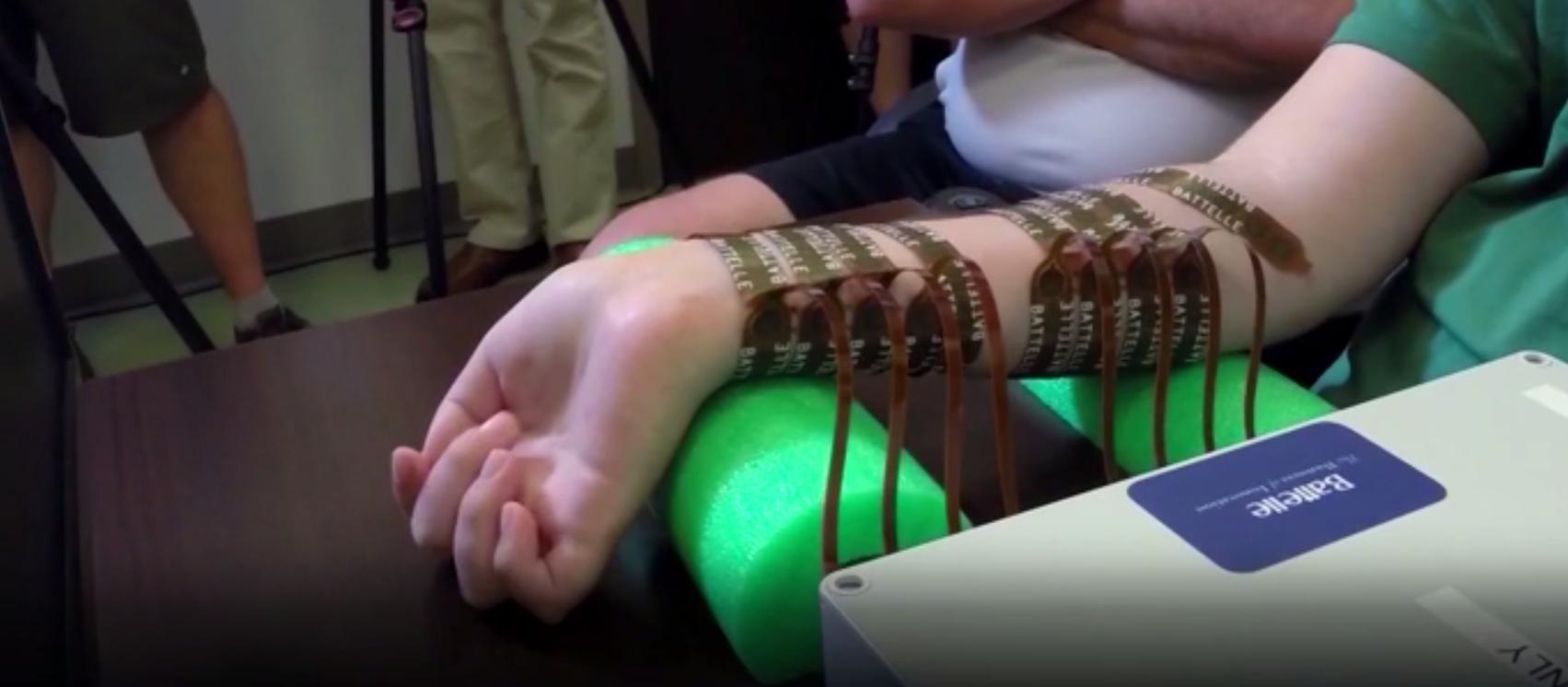 Paralítico logra mover mano con chip