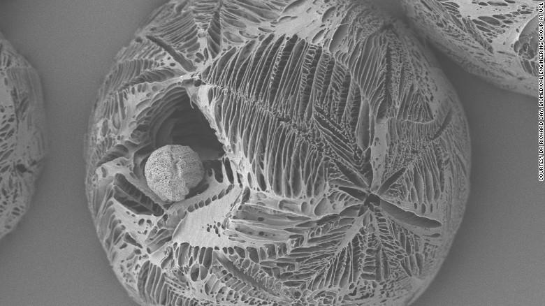 Micropartículas de polímero altamente poroso hecho mediante un proceso de separación de fases inducida térmicamente, de 200 micras de diámetro.