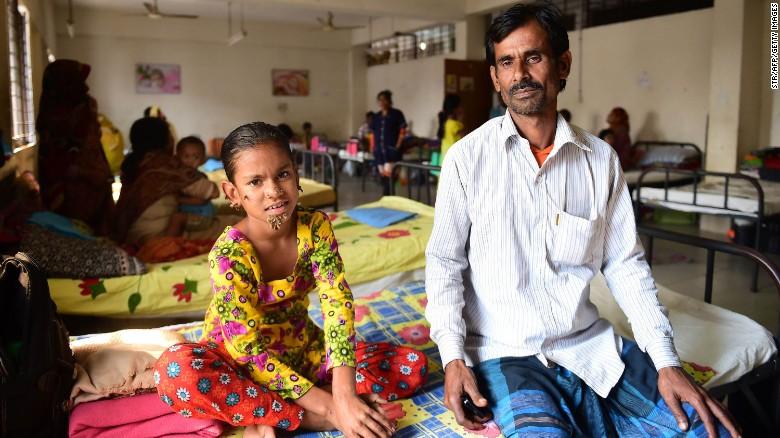 Sahana Khatun con su padre, Mohammad Shahjahan, en el hospital Hospital del Colegio Médico de Dacca (Bangladesh).