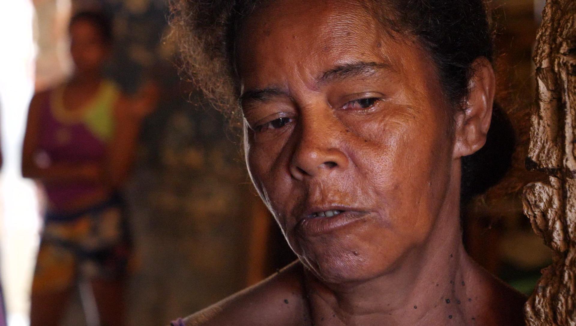 Denis Ester Dias y su esposo luchan por traer comida a la mesa para su familia.