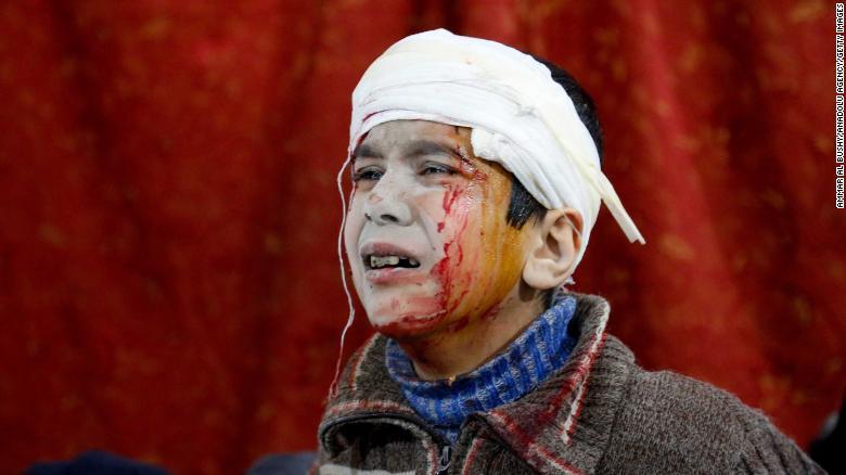 Un niño espera a recibir tratamiento médico en un hospital en el terreno.
