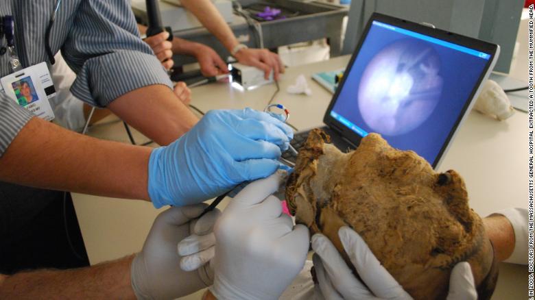 Durante años los arqueólogos han intentado averiguar si la cabeza pertenecía al gobernador o a su mujer. El Museo de Bellas Artes de Boston, que posee el contenido de la tumba, envió la cabeza para su análisis. En 2009 los investigadores del Hospital General de Massachusetts le sacaron un diente para analizarlo.