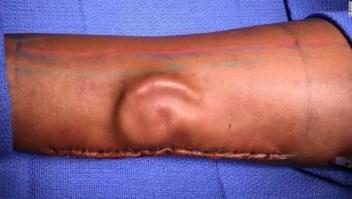 Sí, es una oreja 'creciendo' bajo la piel de un brazo