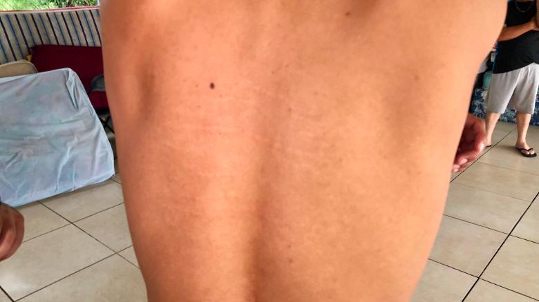 Christian Ortiz, un inmigrante de Honduras, muestra las cicatrices en su espalda.