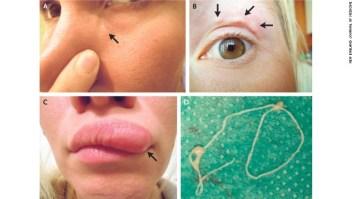 Una paciente de 32 años tomó selfies de un bulto que se movió alrededor de su rostro.