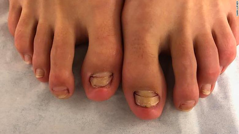 Seis de las uñas de los pies de la mujer comenzaron a verse anormales en los meses posteriores a la pedicura de peces. Esta imagen aparece en el informe de su caso.