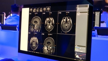 Sistema de inteligencia artificial le gana a grupo de doctores