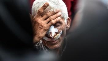 Accidente de tren causa muertos en Turquía