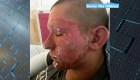 Una planta tóxica quemó la cara a este joven