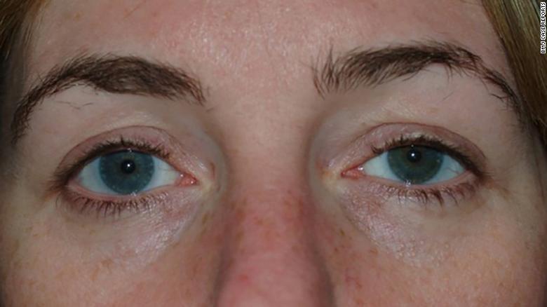 Un leve hinchazón y un poco de caída se puede ver en el ojo izquierdo de la mujer.