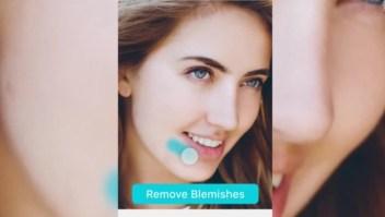 Dismorfia de Snapchat: la perfección digital en la vida real
