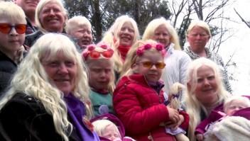Grupos de albinos en Argentina piden atención en plan médico obligatorio