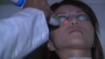 ¿En qué consiste el rejuvenecimiento de la piel con láser?