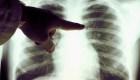 #SaludExpress: ¿Cómo ha evolucionado el cáncer de pulmón?