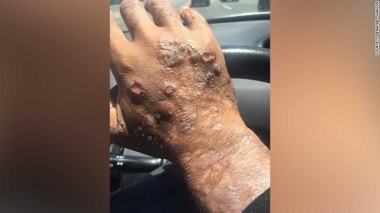El médico de Johnson dijo que tenía lesiones en más del 80% de su cuerpo. Monsanto dijo que no hay evidencia de que Roundup cause cáncer.