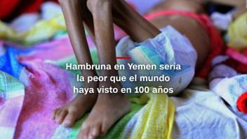#MinutoCNN: Yemen enfrenta la peor hambruna de su historia