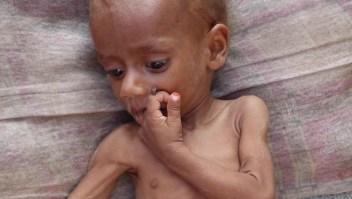 85.000 niños han muerto en Yemen por hambruna