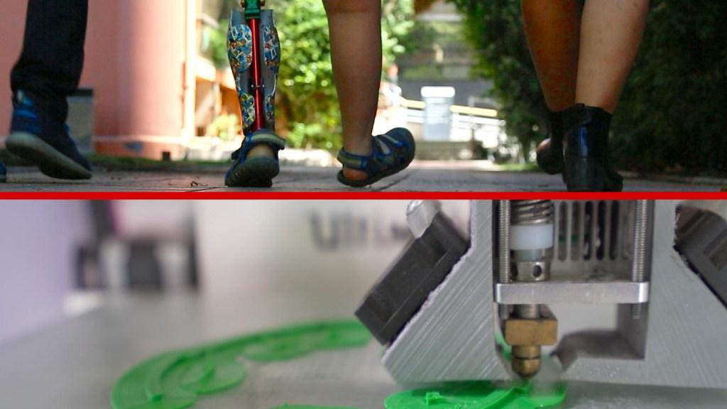 Un escáner, una impresora 3D y solo unos poco días son suficientes para cambiar la vida de una persona