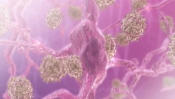 Nuevos datos sobre el Alzheimer y la vacuna contra la gripe