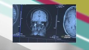 ¿Cuáles son los riegos derivados de las radiografías?