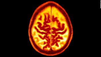 Pautas contra demencia