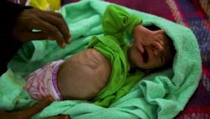 Desvían ayuda de la ONU para mantener el poder en Yemen