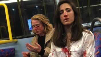 Ataque homofóbico a joven uruguaya en Londres