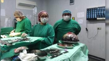 Médicos peruanos extraen tumor de 15 kg