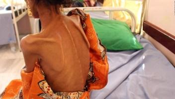Recuperar la flora intestinal en niños desnutridos