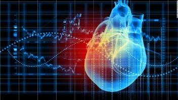Ataque cardiado