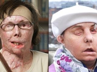 Su trasplante de rostro está fallando, pero Carmen Tarleton no ha ...