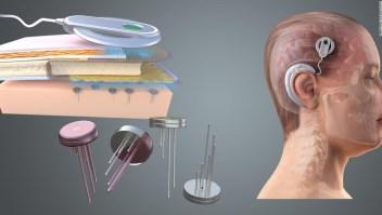 Implantes cerebrales permitirían que el gobierno y empresas lean tu mente