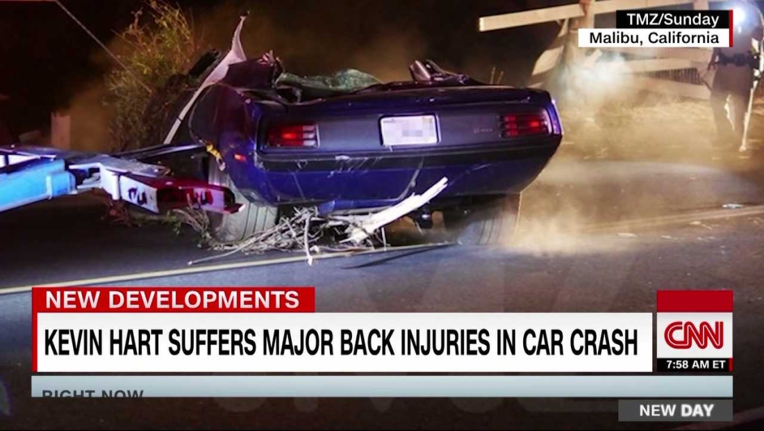 Kevin Hart sufre graves lesiones en accidente de coche