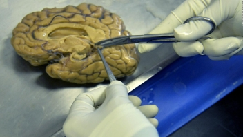Crean mini-cerebros y los implantan a ratas de laboratorio