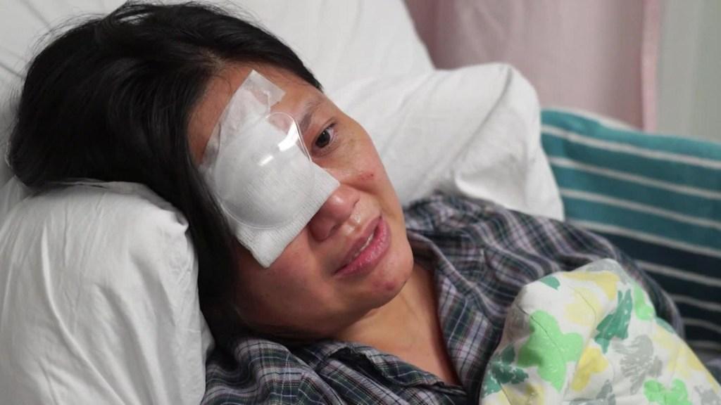 Periodista pierde la vista de un ojo por bala de goma