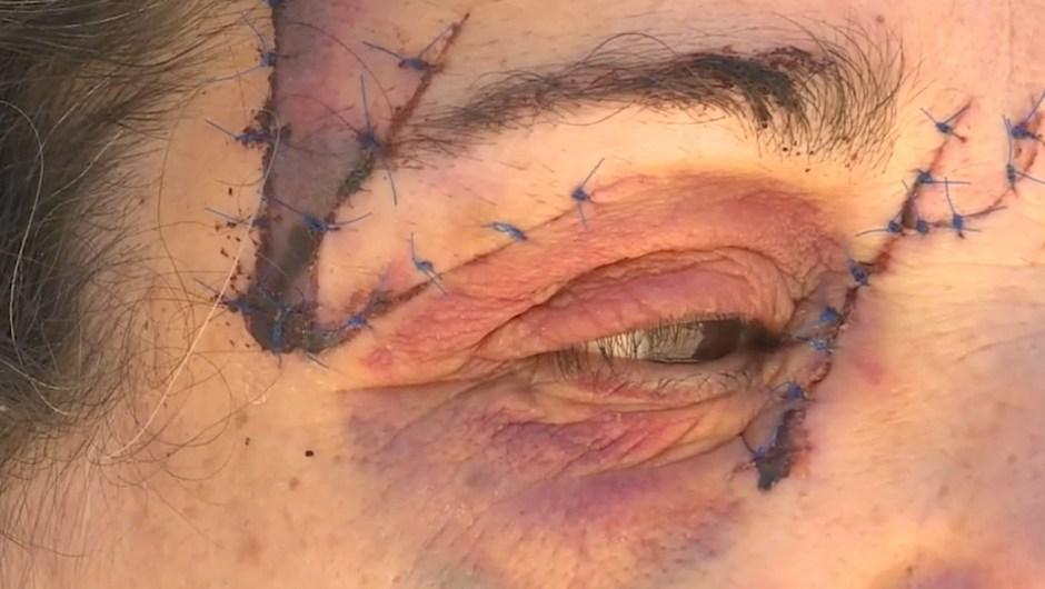 La mujer atacada dio gracias de no haber perdido el ojo.