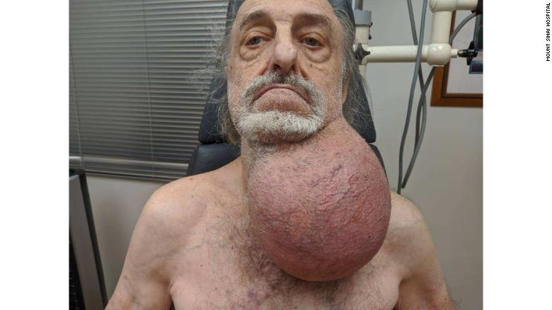 tumor milton wingert pelota futbol nueva jersey salud1