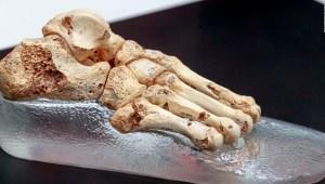 Edificios inspirados en los huesos humanos