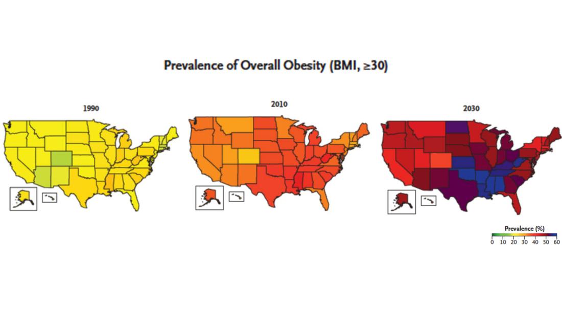 Mapa obesidad