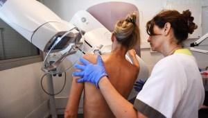 Sistema artificial mejora la detección de cáncer de mama