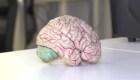 Médico estudiará el desarrollo de la demencia en 7 países