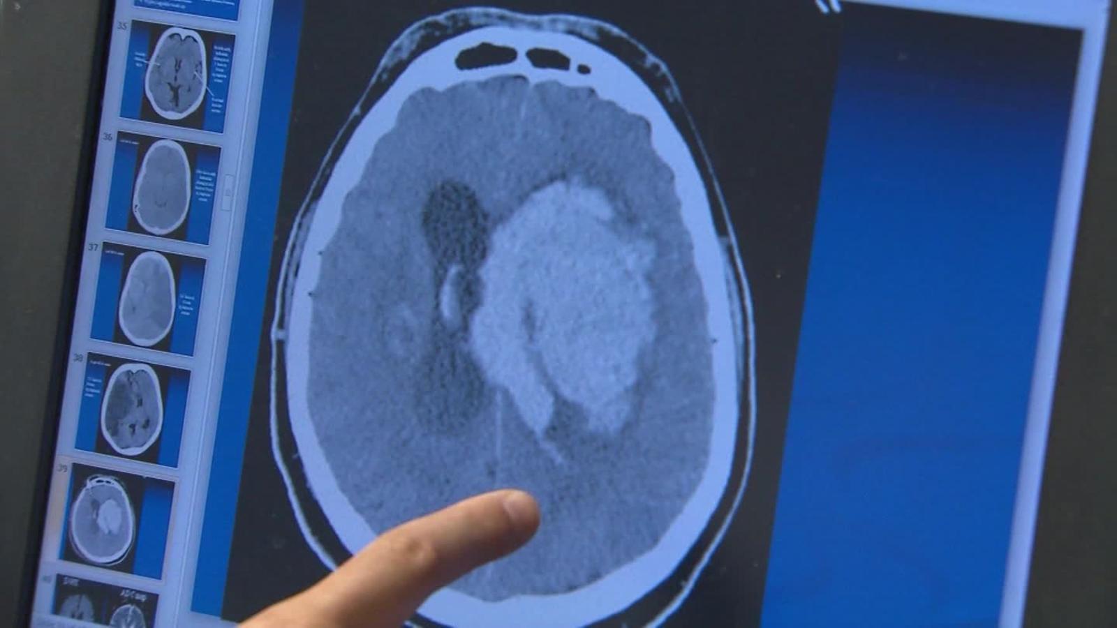 Si duermes mal, tienes mayor riesgo de padecer Alzheimer