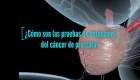 La detección temprana del cáncer de próstata salva vidas