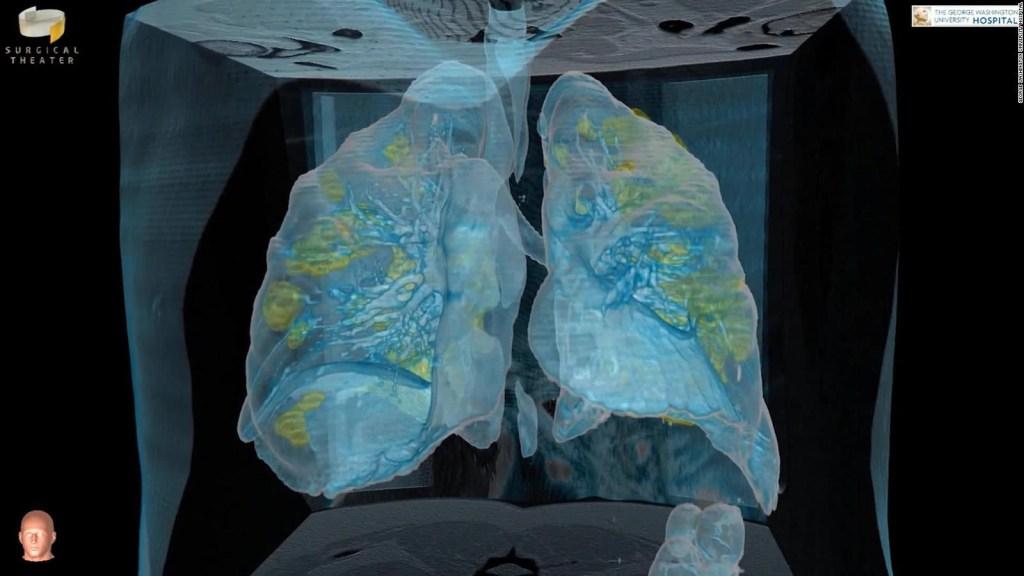 Mira el ataque del covid-19 a los pulmones en 3D