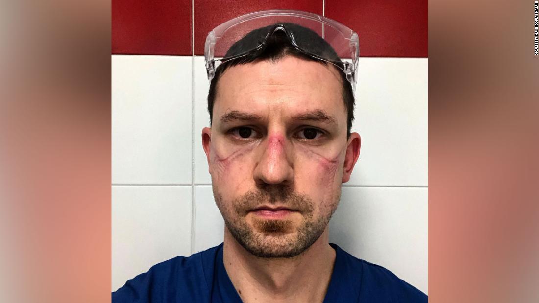 Las caras de los trabajadores de salud en todo el mundo que luchan contra el coronavirus