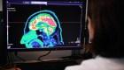 ¿Podría el cerebro ser inmune al cáncer?
