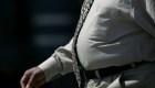 Un estudio relaciona obesidad con demencia